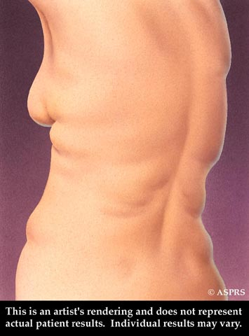 Liposuction Illustration 2