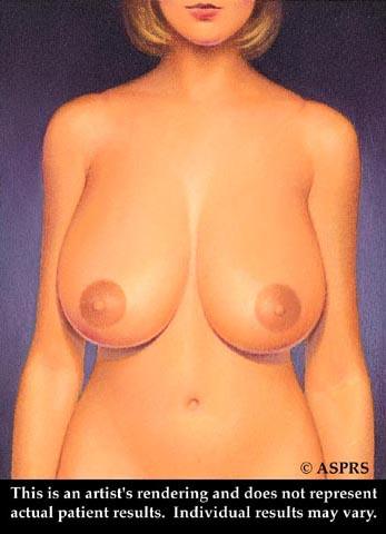 Breast Reduction Illustration 1