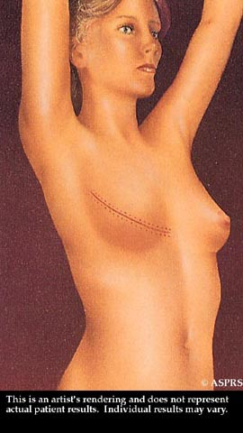 Breast Reduction Illustration 3
