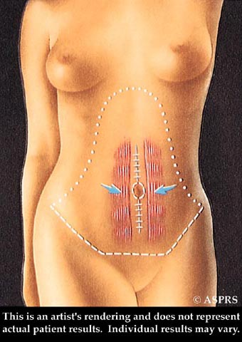 Tummy Tuck Illustration 3