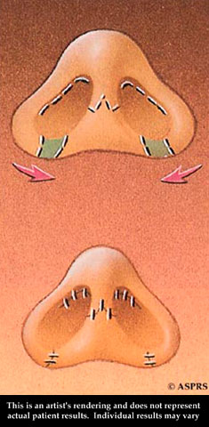 Nose Surgery Illustration 5